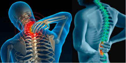 Bệnh thoát vị đĩa đệm cột sống thắt lưng gây đau đớn vô cùng khó chịu