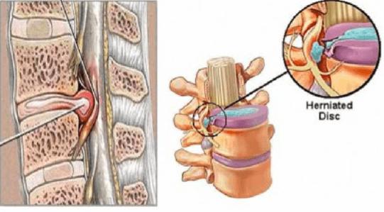 Bệnh thoát vị đĩa đệm cột sống thắt lưng