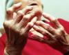 Cách chữa bệnh phong thấp