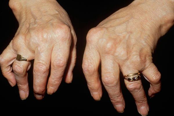 Bệnh viêm đa khớp dạng thấp gây biến dạng khớp
