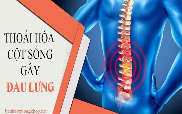 đau vùng thắt lưng do các bệnh lý gây ra