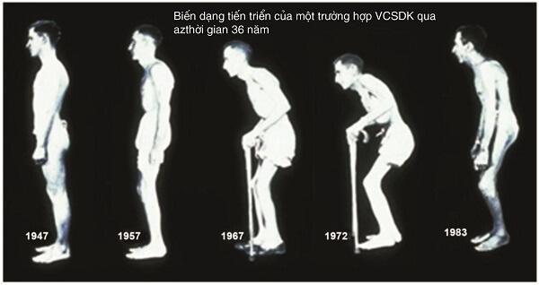 Viêm cột sống dính khớp tiến triển thành nhiều giai đoạn khác nhau