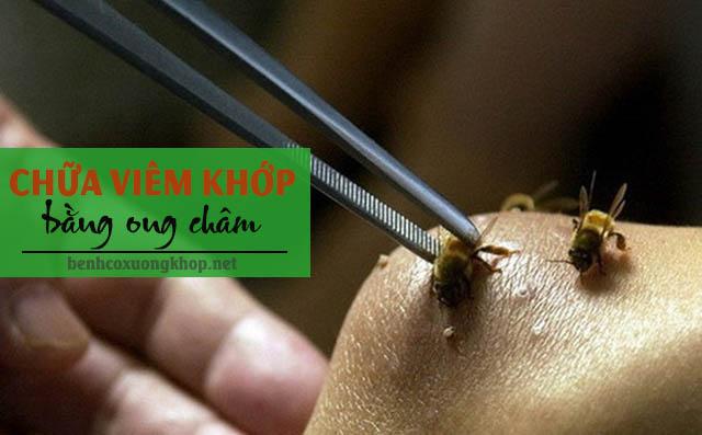 chữa viêm khớp bằng ong châm