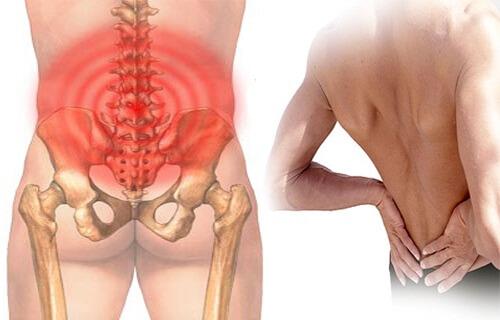 Phong tê thấp Bà Giằng chữa bệnh đau lưng