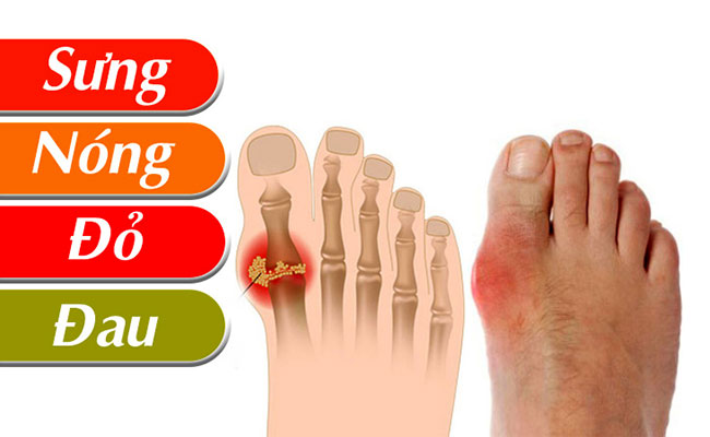 Dấu hiệu nhận biết bệnh gout