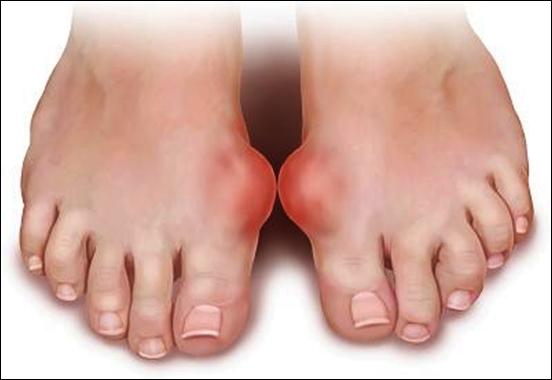 Chữa trị bệnh gout bằng thuốc nam