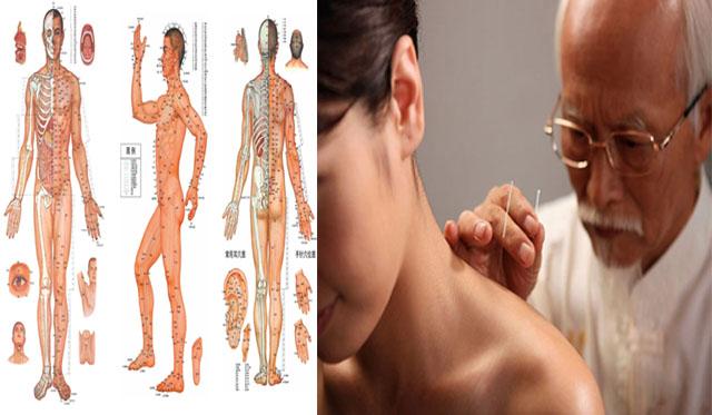 Phương pháp châm cứu chữa viêm khớp vai