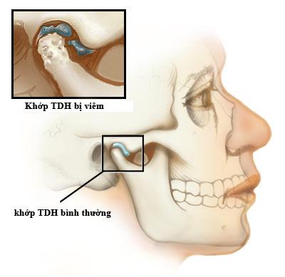 dieu-tri-viem-khop-thai-duong-ham-1