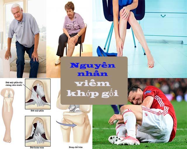 Nguyên nhân gây bệnh viêm khớp gối