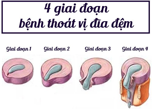 cac-giai-doan-phat-trien-cua-benh-thoat-vi-dia-dem-1