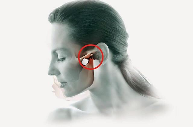 Đau tai là triệu chứng bệnh sái quai hàm