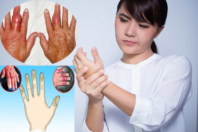 2 giai đoạn của bệnh viêm đa khớp dạng thấp