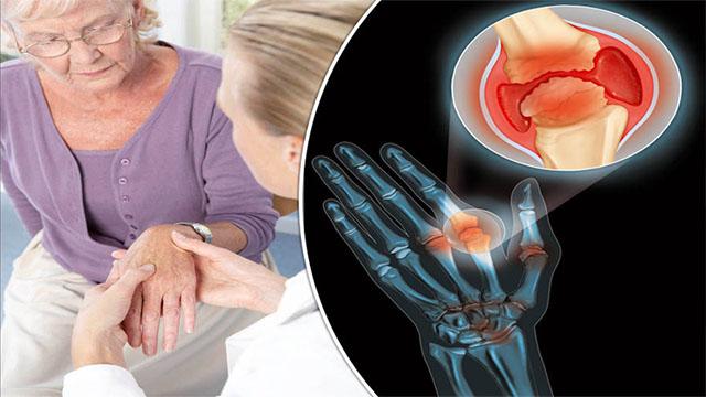 Đau khớp - Triệu chứng bệnh viêm khớp dạng thấp
