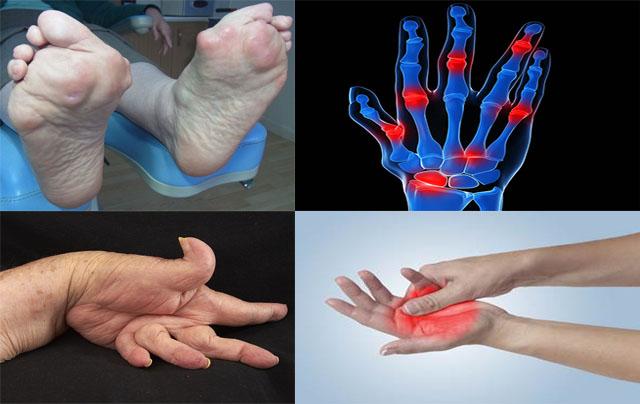 Sưng khớp - Triệu chứng bệnh viêm đa khớp dạng thấp