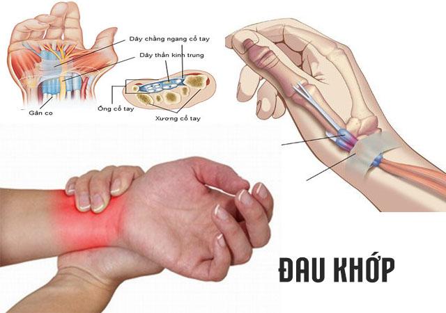 Đau khớp - Triệu chứng viêm khớp