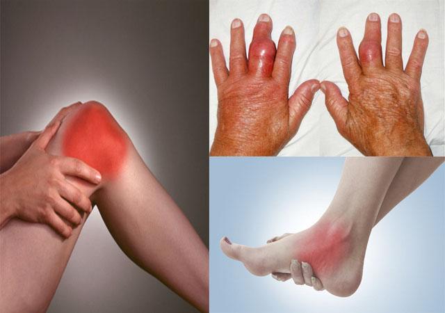 Sưng khớp - Triệu chứng bệnh viêm khớp