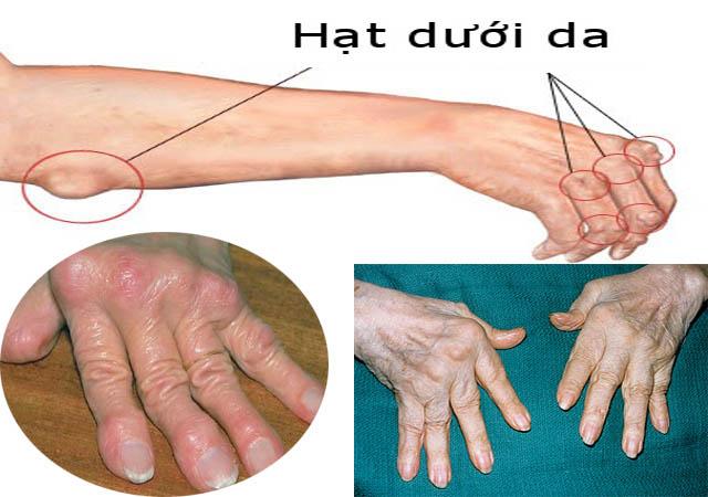 Xuất hiện các nốt ở khớp tay