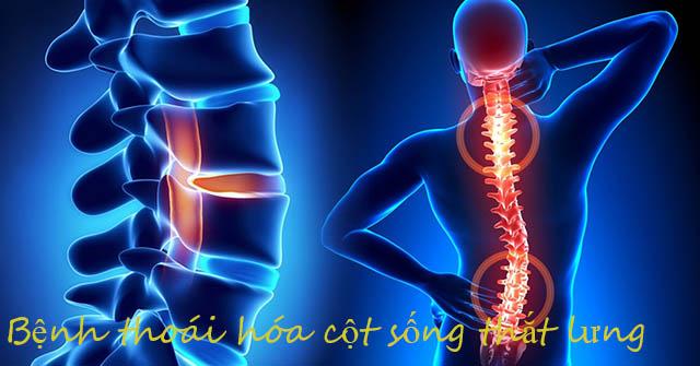 Bệnh thoái hóa cột sống thắt lưng