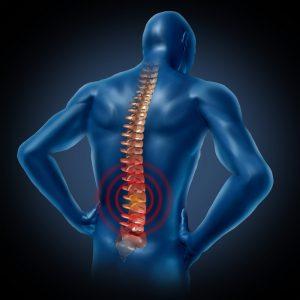 Triệu chứng thoái hóa cột sống thắt lưng thường gặp -1