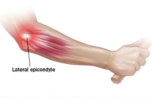 Cách điều trị viêm khớp khuỷu tay phổ biến hiện nay -1