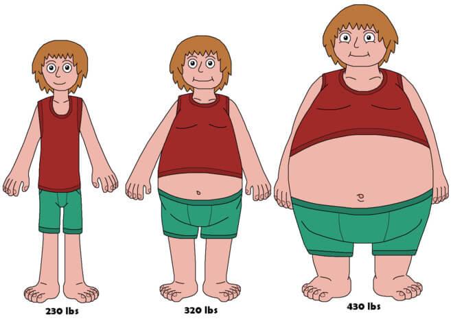Tăng cân - Nguyên nhân thoái hóa cột sống