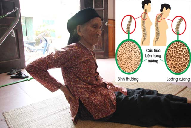 Nguyên nhân lão hóa cột sống theo tuổi tác