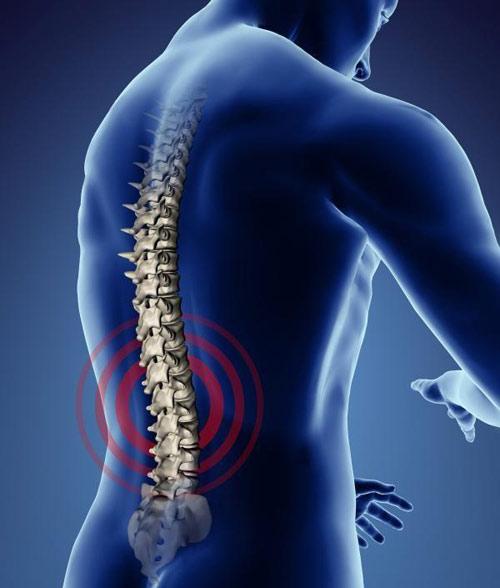 Các nguyên nhân gây thoái hóa cột sống thắt lưng cần lưu ý -1