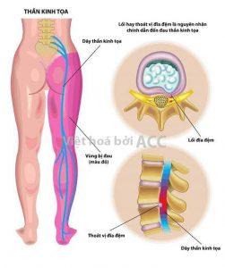 Tiêm Steroid giảm đau dây thần kinh tọa -1