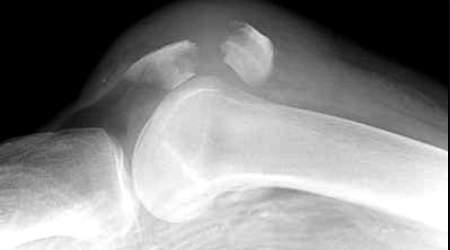 Bị gai xương bánh chè chữa như thế nào?-1