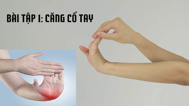 Bài tập căng cổ tay chữa viêm khớp cổ tay