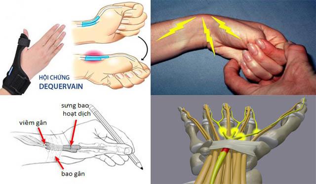Viêm khớp cổ tay do hội chứng De Quervain