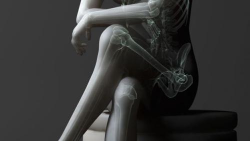 Tác hại khôn lường của thói quen ngồi vắt chéo chân-4