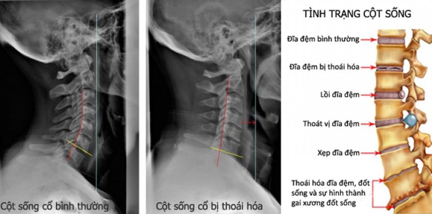 kien-thuc-phong-benh-thoai-hoa-dot-song-co-ban-nen-biet.3