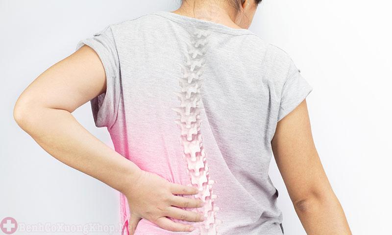 Bệnh phình đĩa đệm gây đau lưng