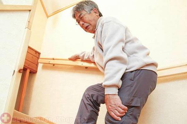 Bệnh gai khớp gối gây hạn chế vận động