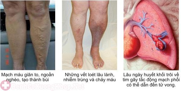 Viêm tắc tĩnh mạch gây phù chân