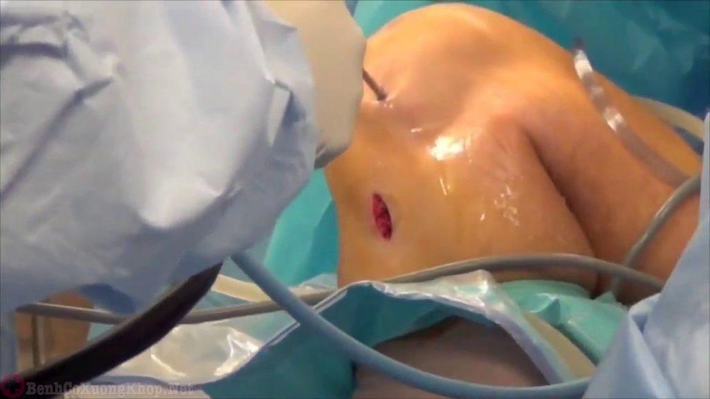 Cắt bỏ phần xương, sụn bị hư hại và thay khớp gối nhân tạo vào