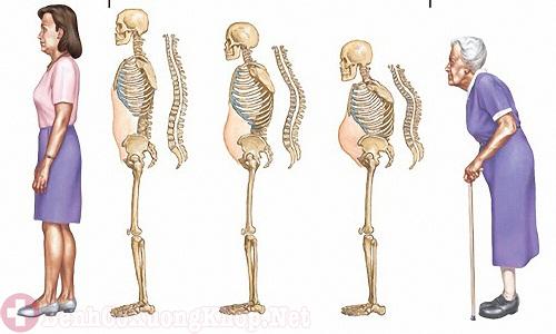 Lão hóa xương khớp gây đau nhức tay chân ở người cao tuổi
