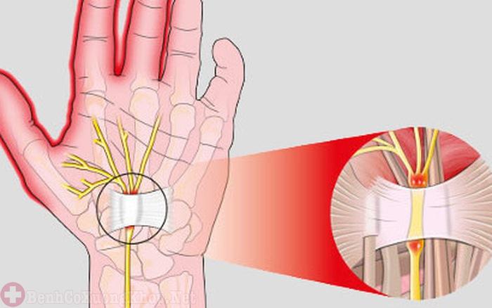 Bệnh viêm đa khớp gây hội chứng ống cổ tay