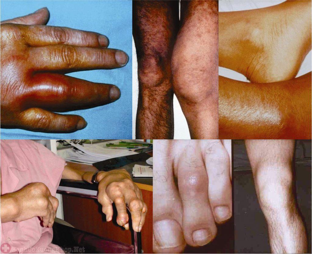 Bệnh viêm đa khớp uống thuốc gì?