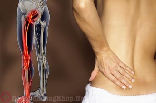 Các biến chứng đau dây thần kinh tọa