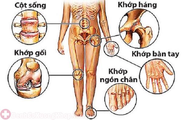 Triệu chứng thoái hóa khớp xuất hiện tại một số vị trí phổ biến