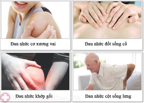 Các triệu chứng thoái hóa khớp