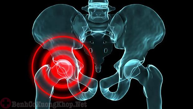 Người bị tổn thương khớp háng nặng sẽ phải thay khớp háng