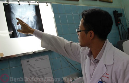 Kiểm tra khớp háng trước khi tiến hành phẫu thuật
