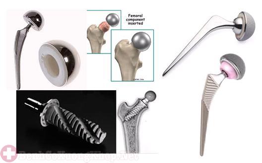 Phần chuôi được áp dụng phẫu thuật thay khớp háng
