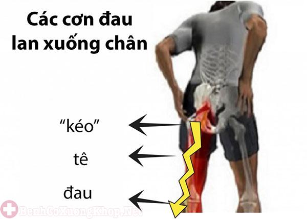 Cơn đau lan xuống chân khi bị thoát vị đĩa đệm nặng