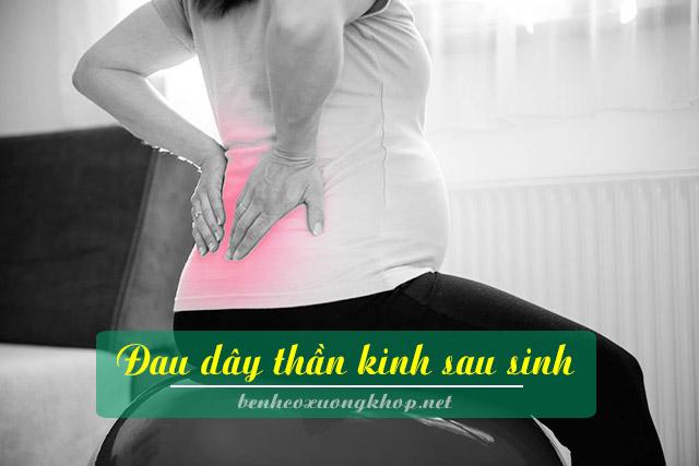 đau dây thần kinh sau sinh