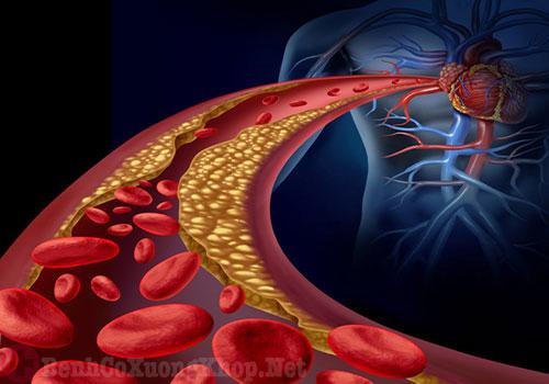 Xơ vữa động mạch gây đau cổ vai gáy