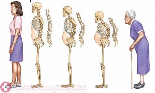 Lão hóa xương khớp theo tuổi tác